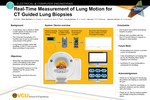 Real-Time Measurement of Lung Motion for CT Guided Lung Biopsies